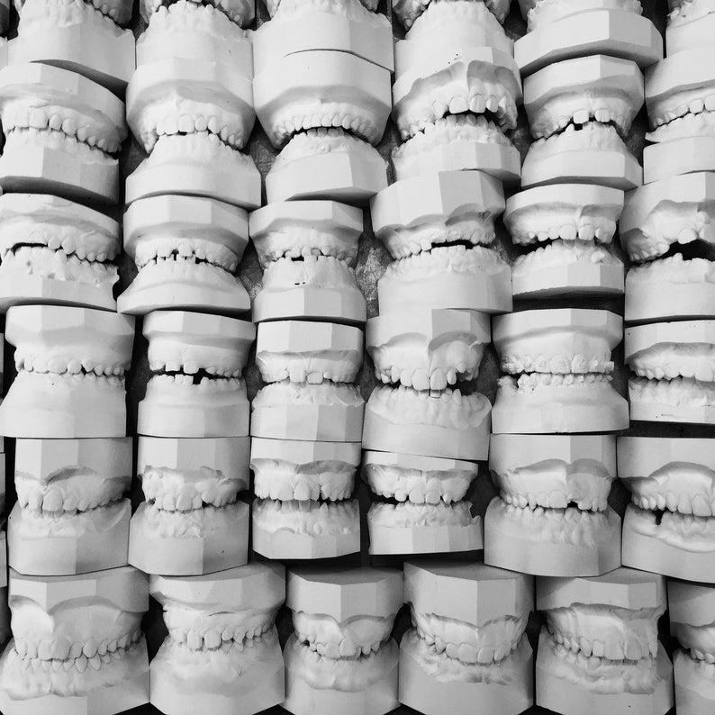 Creepy Vintage Dental teeth molds  old dentist tooth mold